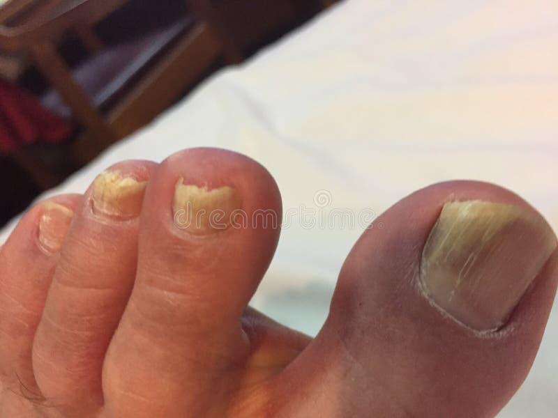 在脚趾钉子的真菌 库存图片