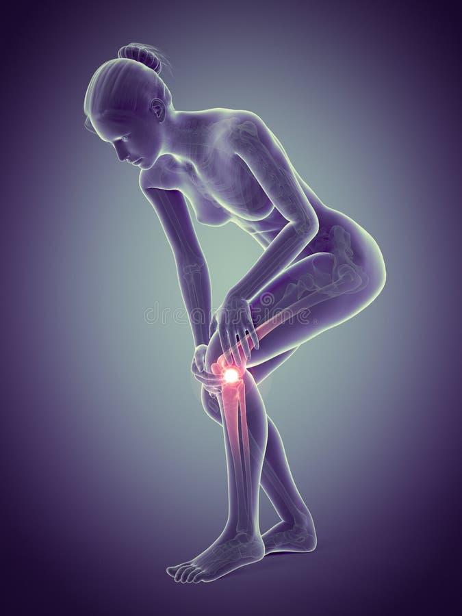 在膝盖的痛苦 向量例证