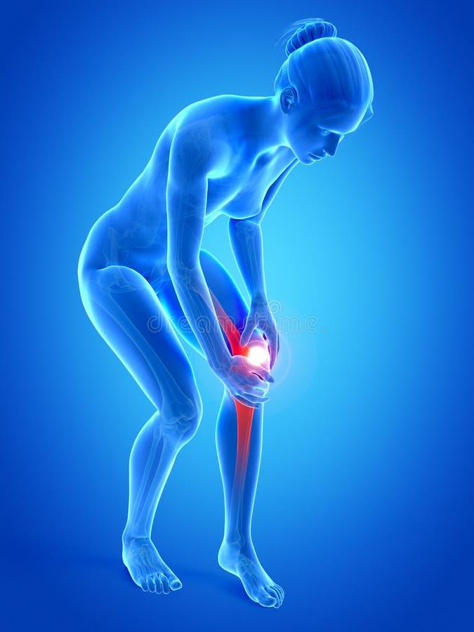 在膝盖的痛苦 库存例证