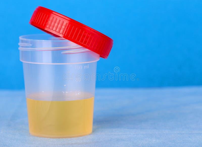 在被打开的塑胶容器的医疗尿检 免版税库存照片