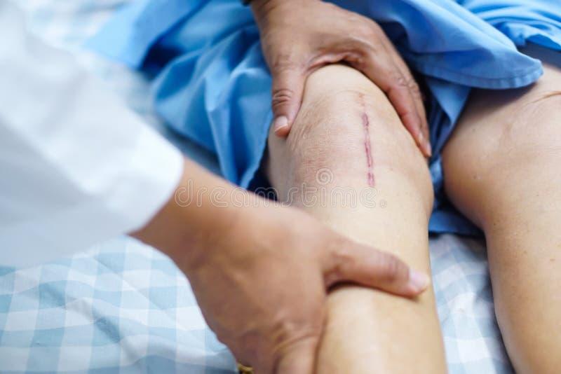 在计算机主板的螺丝 亚裔资深耐心夫人的老妇人显示她伤痕外科总膝盖关节替换 库存照片