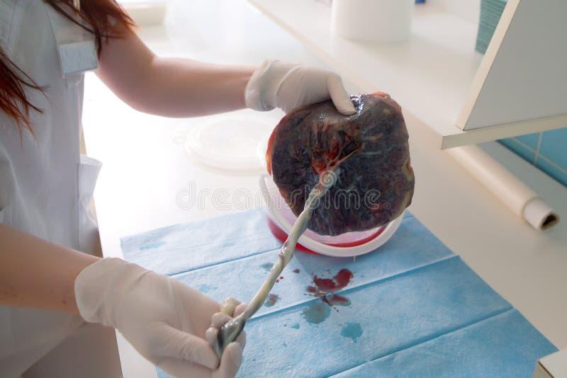 在诞生之后的健康人的胎盘 免版税库存图片
