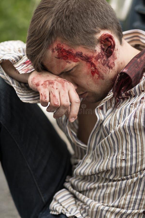 在车祸以后的受伤的人 免版税库存图片