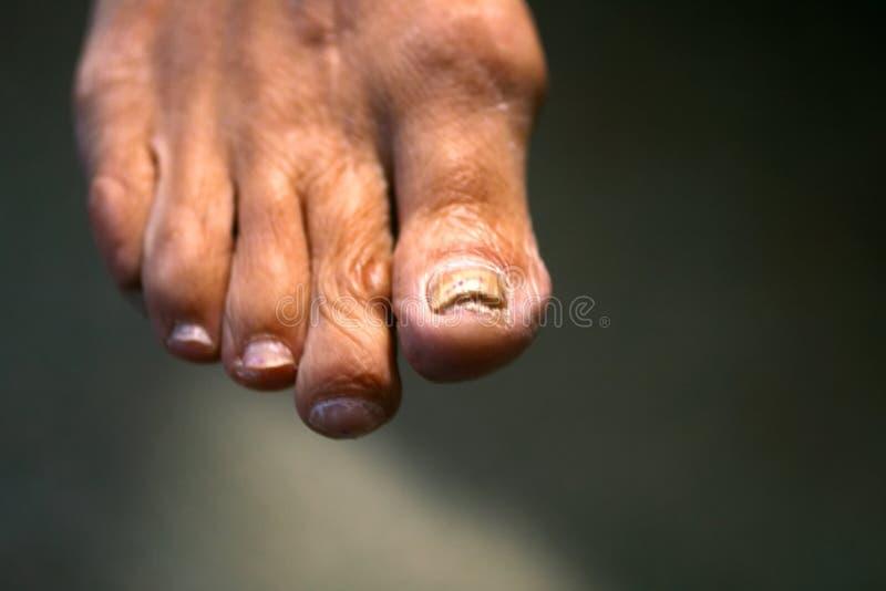 在钉子的真菌 在脚的扭转的手指与老茧 在大脚趾的骨头 库存图片