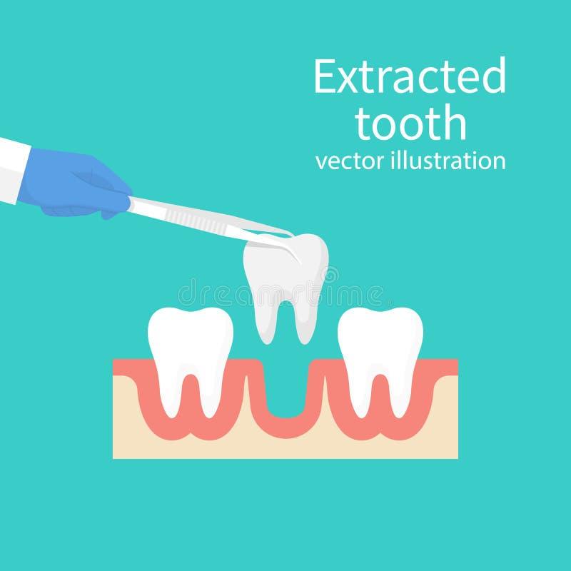 在钳子的被拔的牙 库存例证