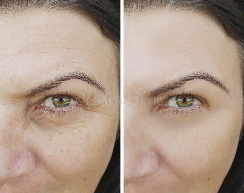 在防皱胶原眼睛做法补白防皱撤除前后,面对耐心皱痕 免版税库存照片