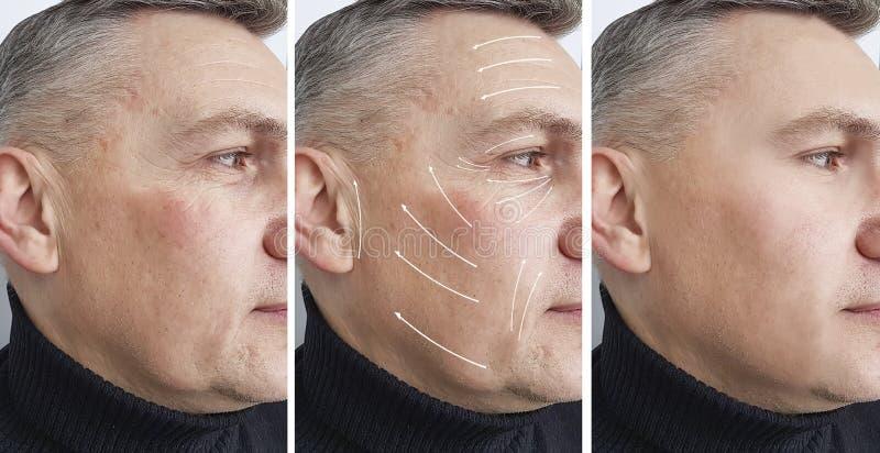 在面孔在皮肤学移动程序前后,箭头的人皱痕 图库摄影
