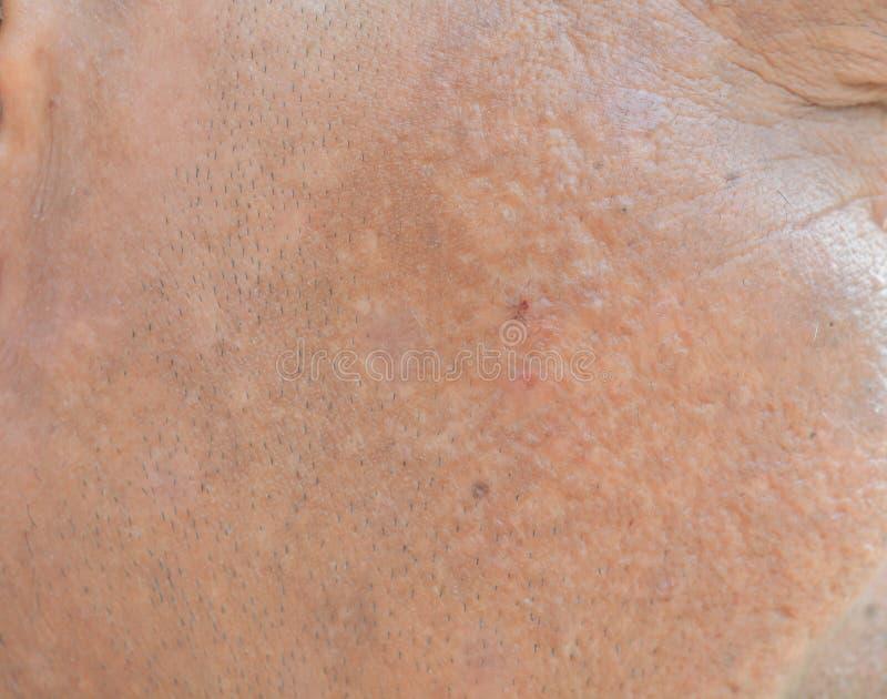 在面孔的雀斑和黑点和皱痕 免版税库存照片