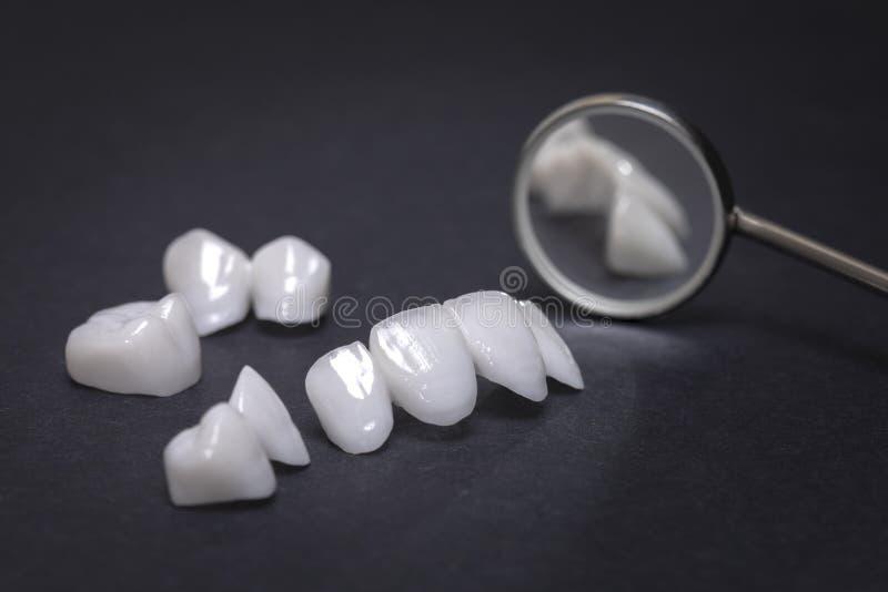 在黑暗的背景的牙齿镜子和锆石假牙-陶瓷表面饰板- lumineers 免版税图库摄影