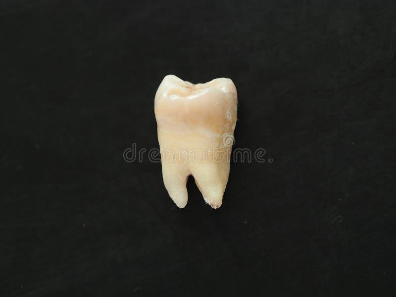 在黑背景的特写镜头唯一真正的牙 健康牙 免版税库存图片