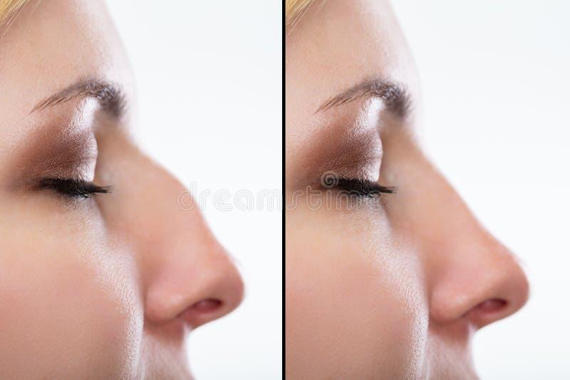在鼻子的整容前后 库存照片