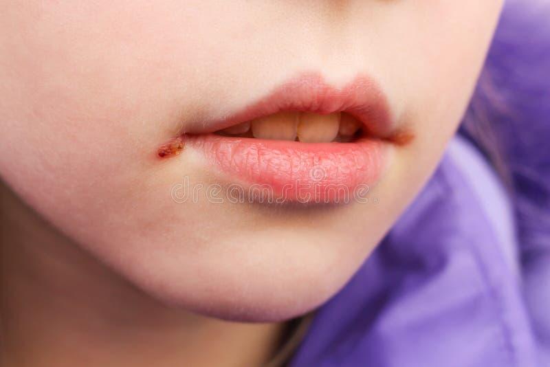 在嘴唇的疱疹 免版税库存照片