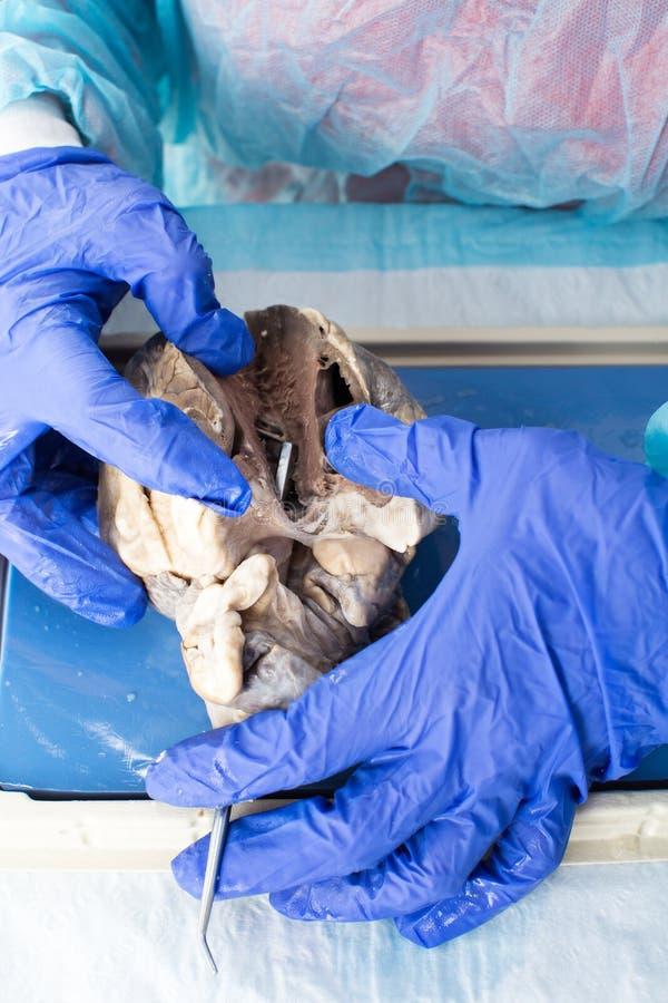 在医学院解剖心脏的学生 免版税库存图片