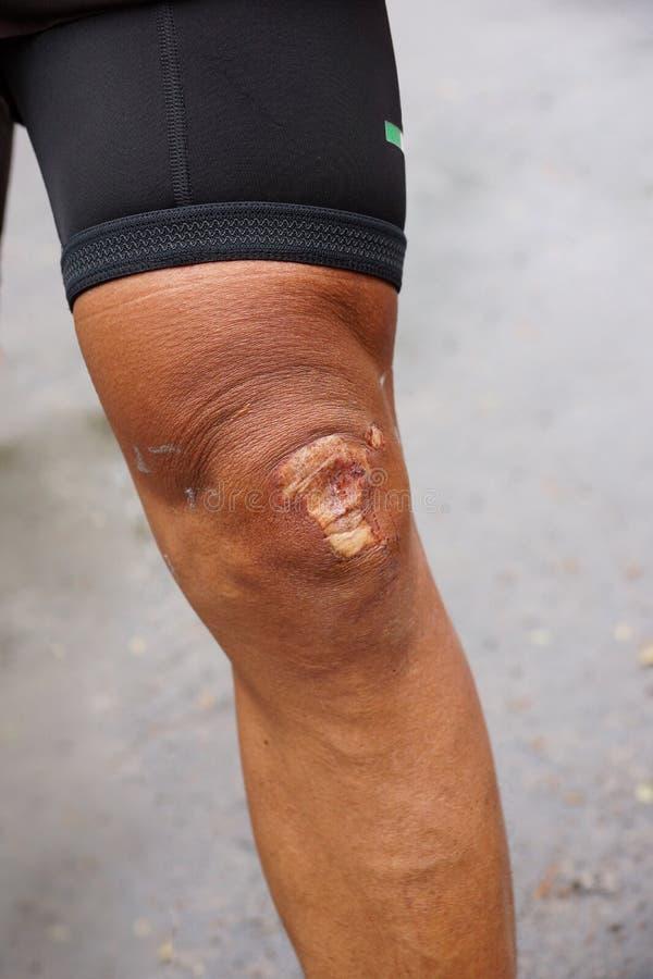 在他的膝盖的创伤伤痕 免版税库存照片
