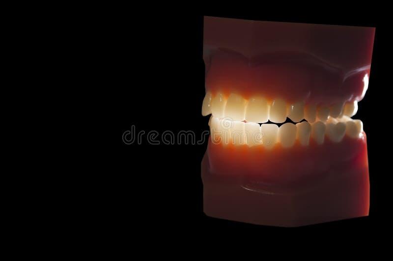 在黑色隔绝的牙齿牙模子背后照明 库存图片