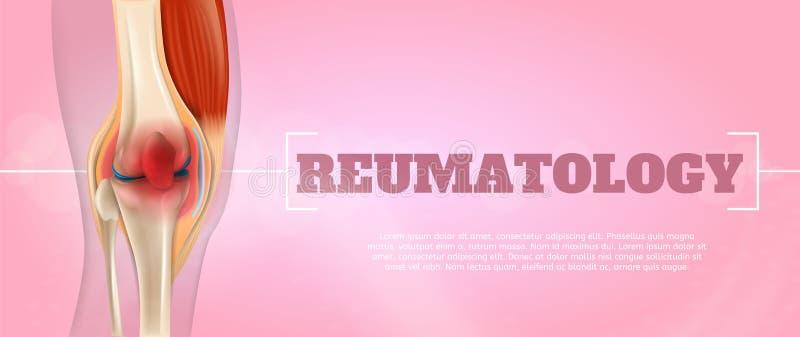 在3d的现实例证Reumatology医学 向量例证