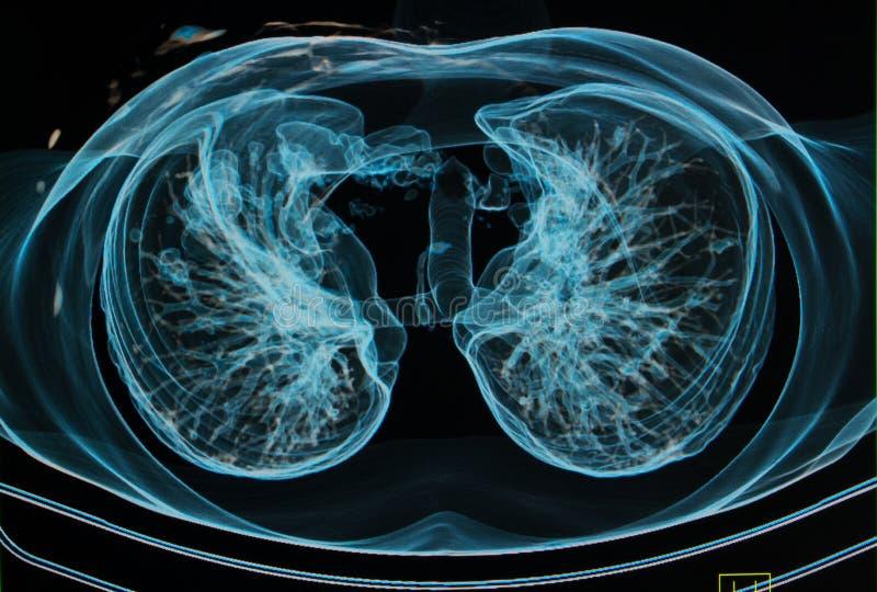 在3d图象之下的胸部X光 皇族释放例证