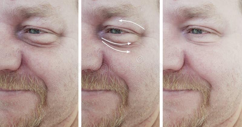 在correctio再生n做法前后的男性面孔皱痕 免版税库存照片