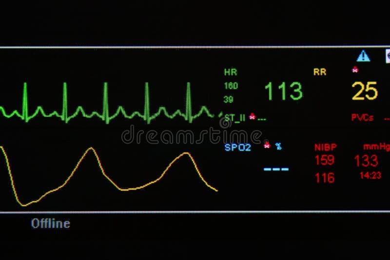 在ICU部件的EKG监控程序 库存图片