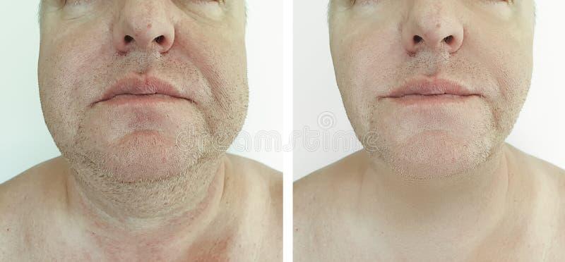 在liftingsagging的治疗前后的男性双下巴 图库摄影