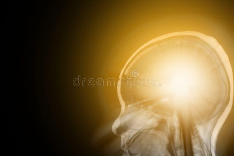 在MRI头骨的发光的人脑 库存照片