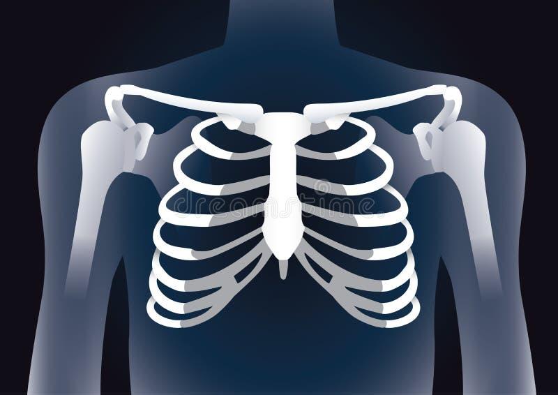 在X-射线图象概念的人的胸廓 皇族释放例证