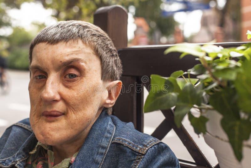 坐在室外的残疾人画象 库存照片