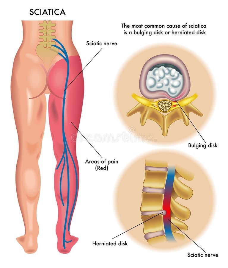坐骨神经痛 向量例证