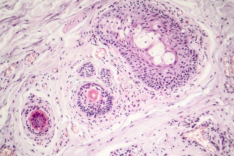 基础细胞癌 免版税图库摄影