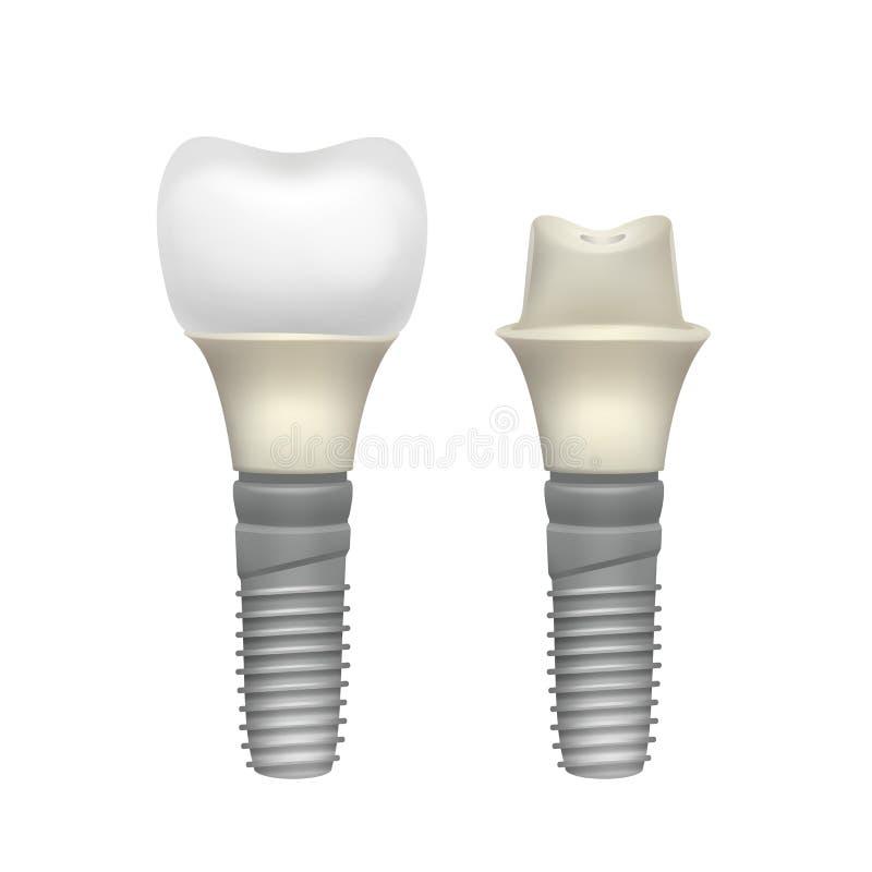 塑料被装配的牙植入管 皇族释放例证
