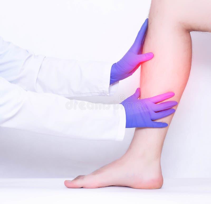外科医生举办损坏的小牛韧带的一个身体检查在一个人的腿,扭伤,医疗,微破裂的 库存照片