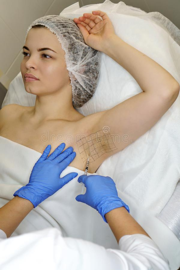 多汗症的治疗 透明质酸射入 库存图片
