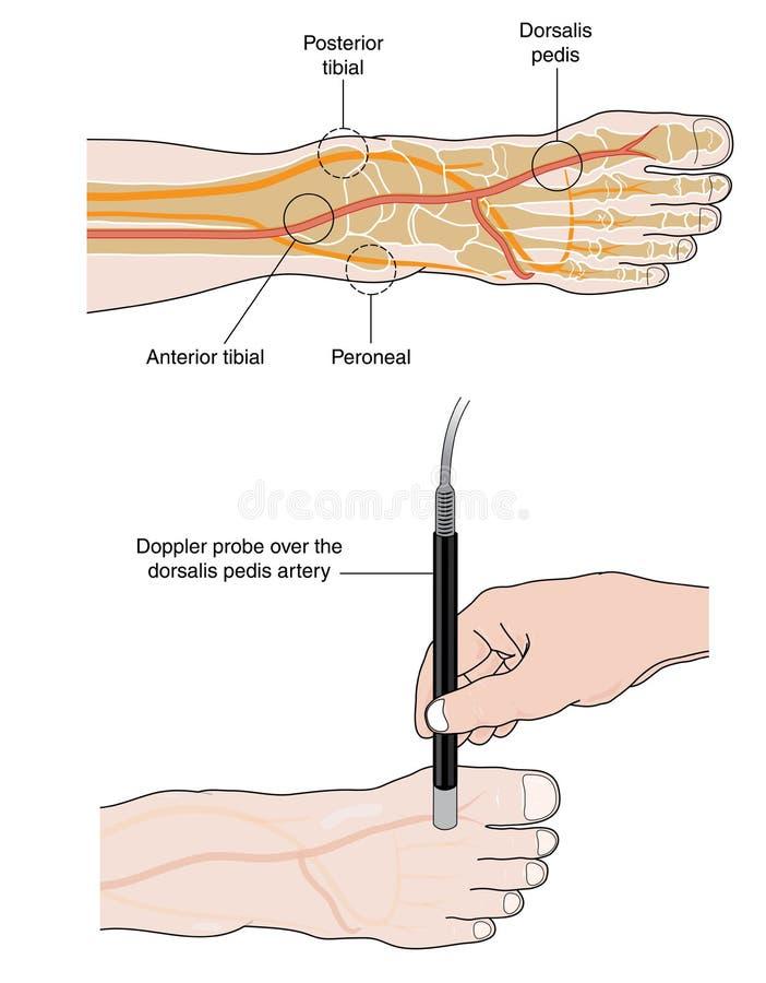 多谱勒仪脚蹬脉冲的探针测量 向量例证