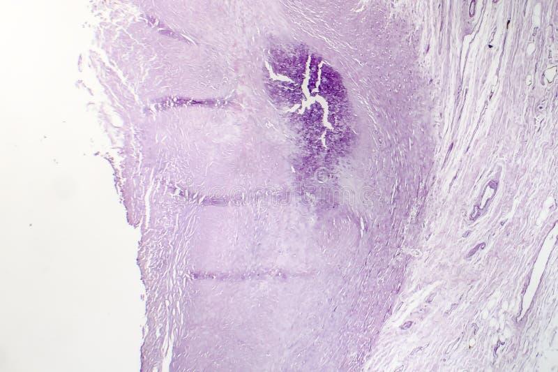 大动脉动脉粥样硬化,轻的微写器 免版税库存照片