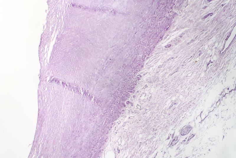 大动脉动脉粥样硬化,轻的微写器 图库摄影