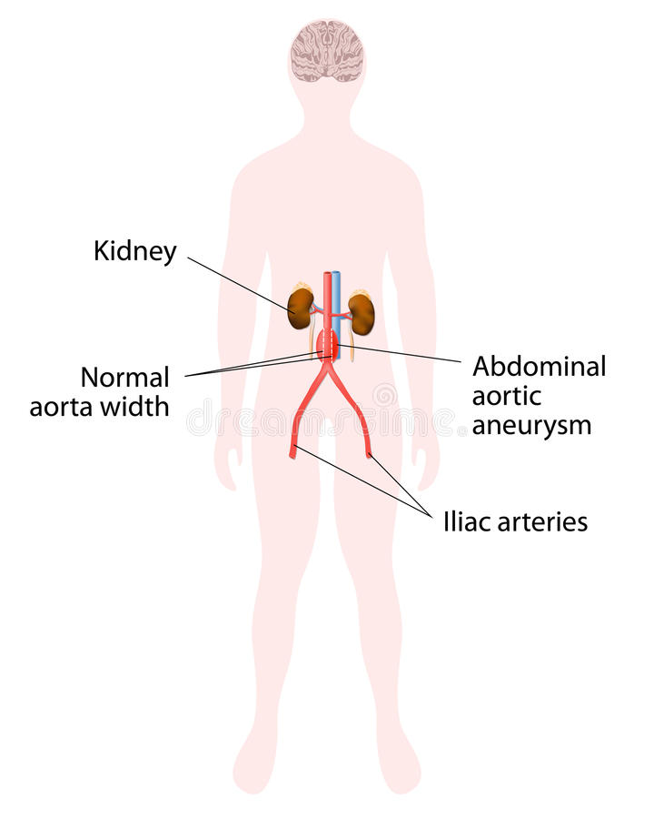 大动脉胃肠的动脉瘤 皇族释放例证
