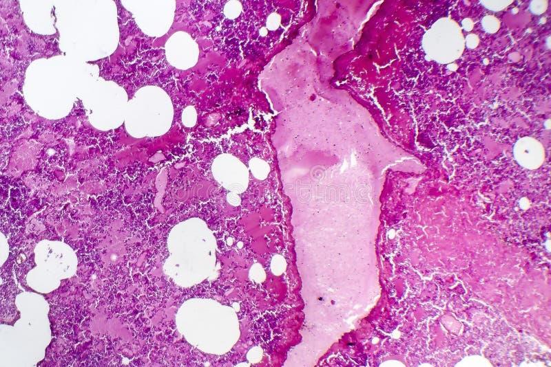 大叶性肺炎,出血性的肿鼓期间 免版税库存图片