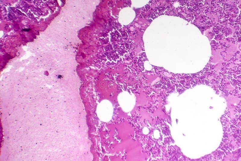 大叶性肺炎,出血性的肿鼓期间 库存照片