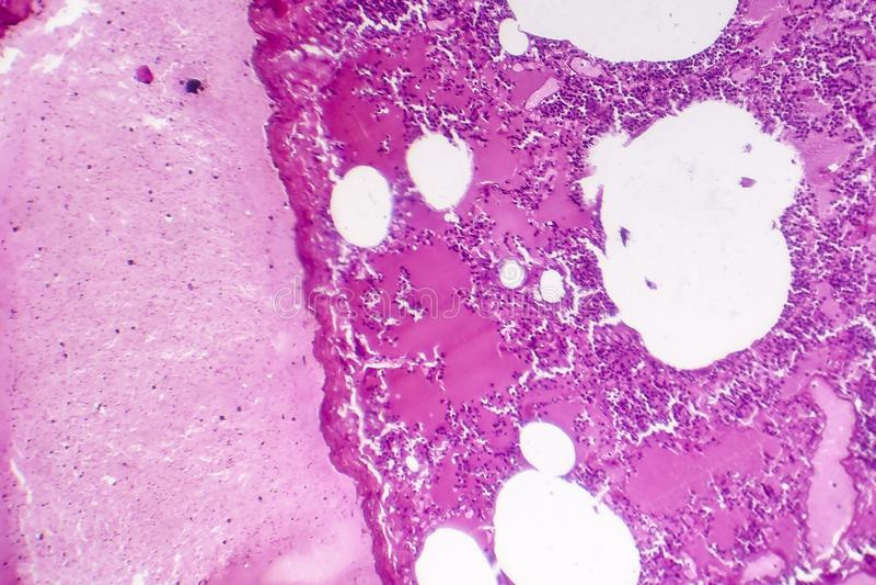 大叶性肺炎,出血性的肿鼓期间 库存图片