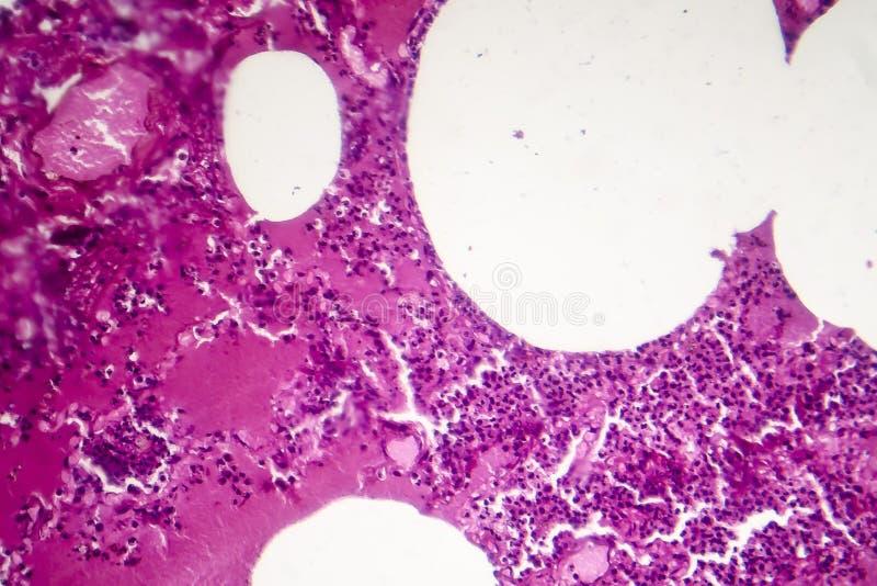 大叶性肺炎,出血性的肿鼓期间 图库摄影