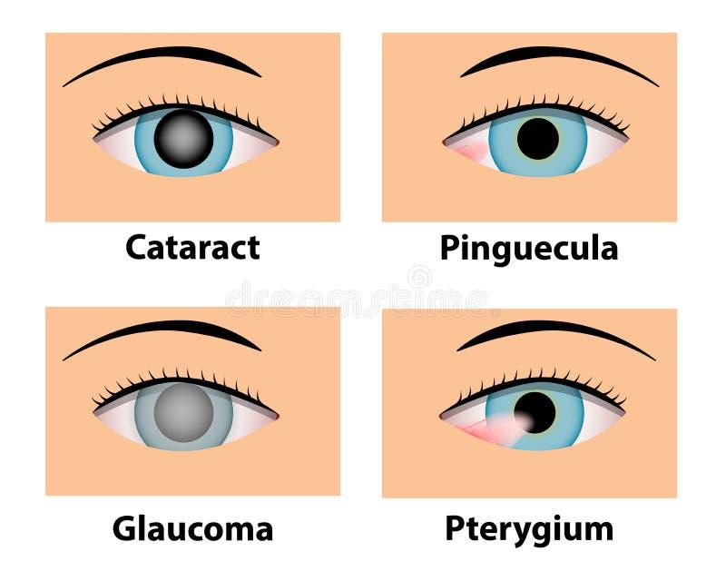 大瀑布、Pinguecula、青光眼和鳍型肢,眼睛关心 皇族释放例证