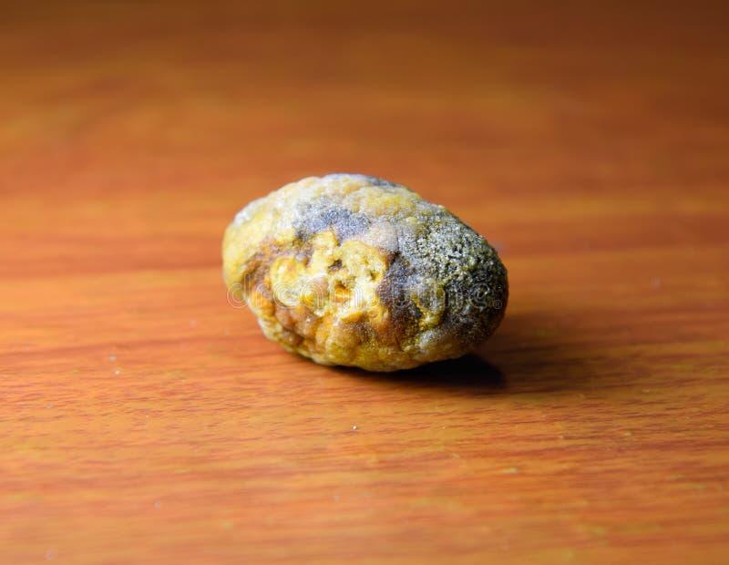 大胆结石,胆囊石头 胆结石的结果 库存照片
