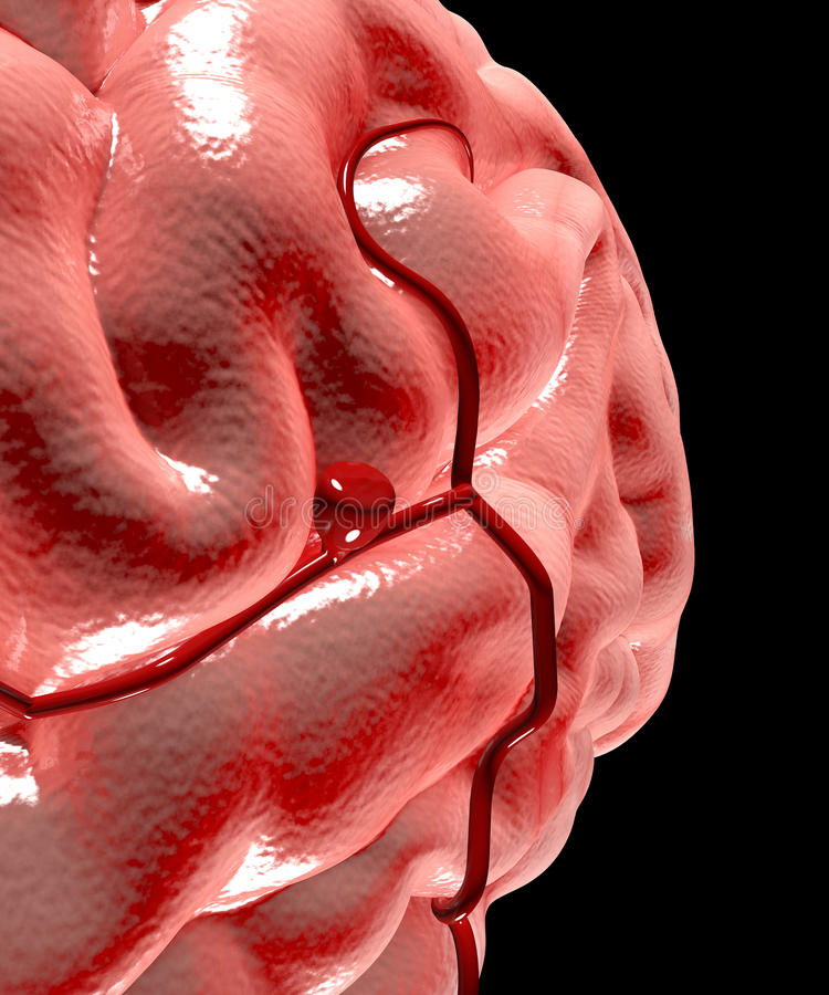 大脑动脉瘤,脑子头 库存例证