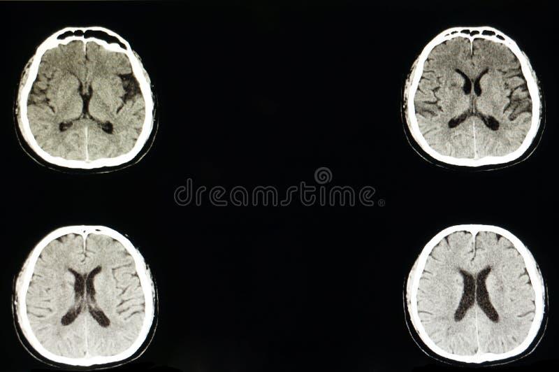大脑梗塞和atropy 免版税库存图片