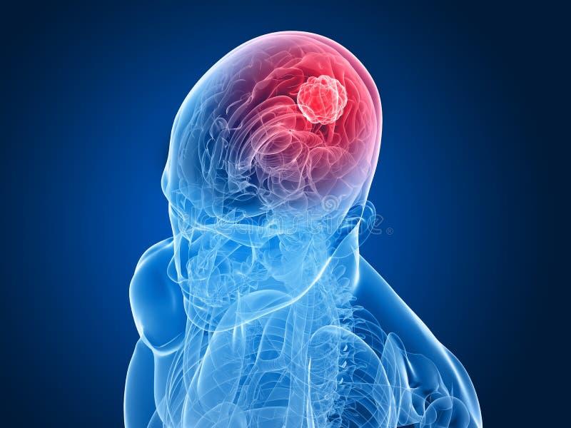 大脑肿瘤 库存例证