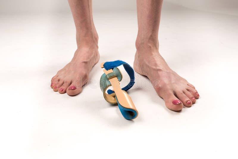 大脚趾的更正的稳定的整直法在妇女腿的,当hallux valgus,2条腿,被隔绝的特写镜头,白色 免版税库存图片