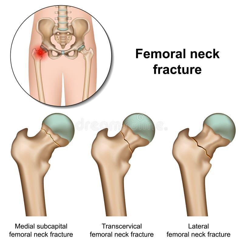 大腿骨脖子破碎在白色背景的医疗例证 向量例证