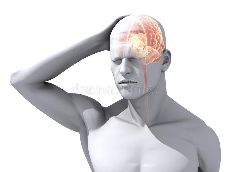 头疼例证偏头痛 向量例证