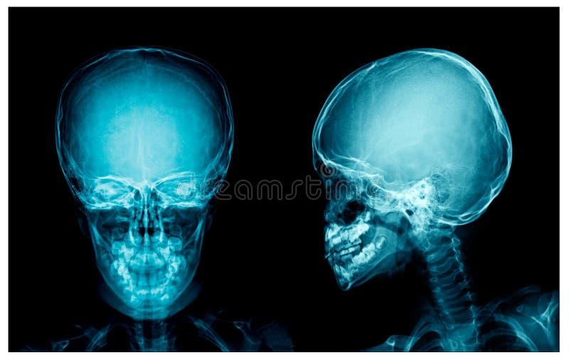 头骨X-射线AP和侧向看法 皇族释放例证