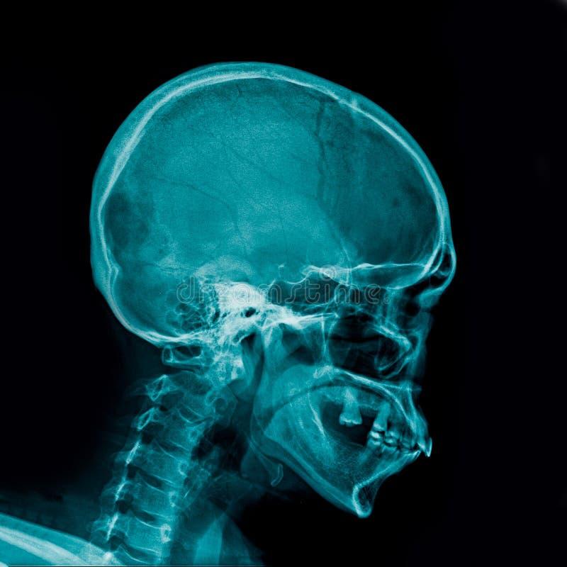 头骨X-射线AP和侧向看法 向量例证